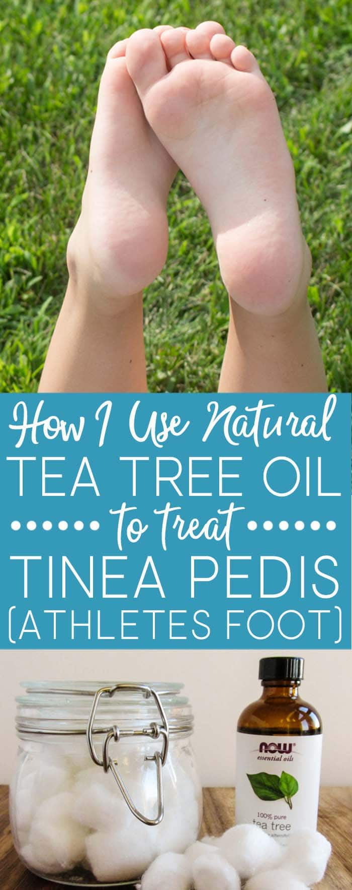 Learn how I successfully use tea tree oil to treat tinea pedis (athletes foot) instead of over-the-counter products. The fungus is gone in DAYS!
